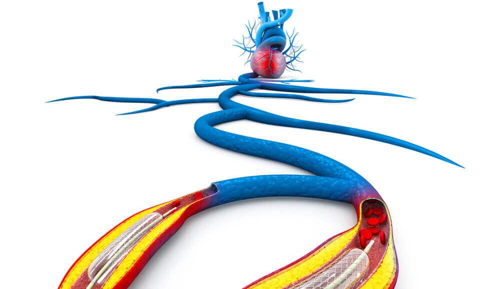 Herz Arterien